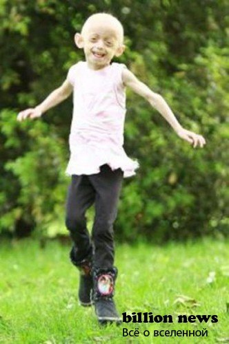Девочка, которая старее в 8 раз быстрее обычного человека (19 фото)