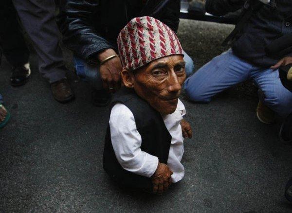 Самый маленький человек в мире (8 фото)