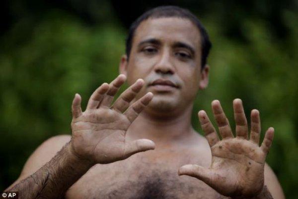 Человек с 24 пальцами (5 фото)