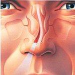 Как лечить искривление носовой перегородки: операции, лазерное исправление
