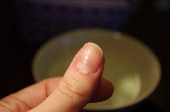 Как правильно обрезать кутикулу?