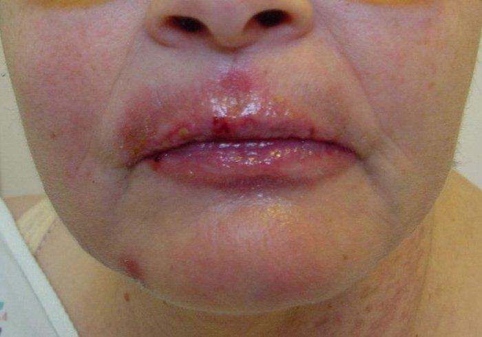 Лечение герпеса в домашних условиях на лице