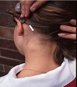 Воспаление затылочного лимфоузла на голове
