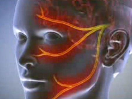 Невралгия: симптомы, фото, лечение