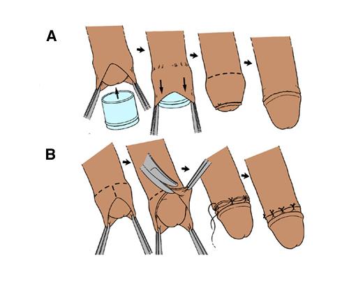 Делают ли обрезание взрослым мужчинам
