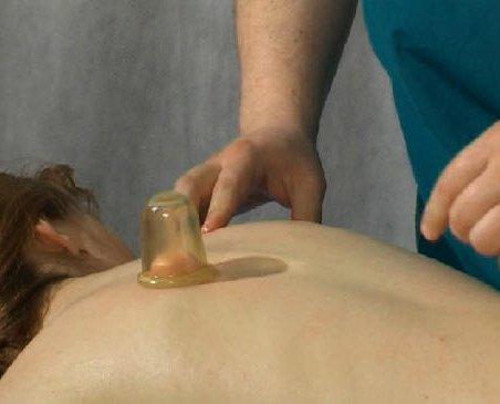 Вам помог баночный массаж от целлюлита
