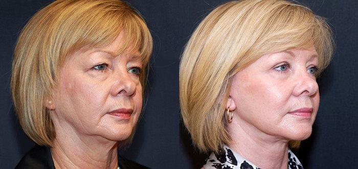 Липосакция лица и щек: отзывы, фото до и после