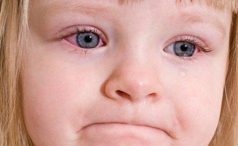 Симптомы и лечение коньюктивита у ребенка